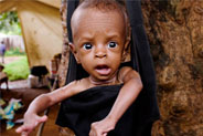 La malnutrizione uccide: fermiamola!